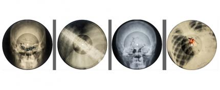 X-RAY AUDIO EVENTS & BOOK